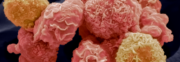 Omeros' GPCR program explores immunotherapies fighting solid tumors and hematologic malignancies